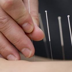 Distal Needle Acupuncture