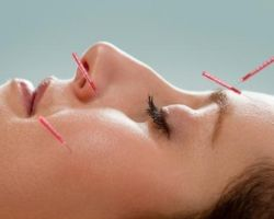 Facial / Cosmetic Acupuncture